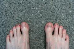 Dagen efter ett marathon (KRSE) Tags: gatufoto fotosndag