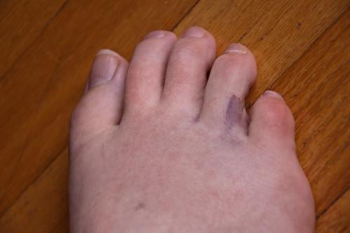 a broken toe?
