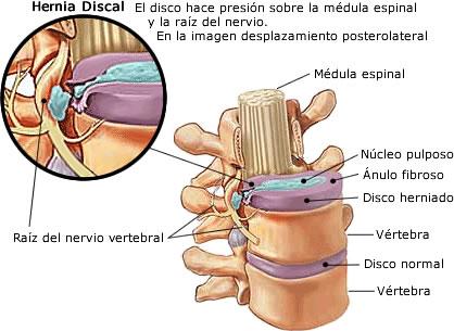 El complejo de los ejercicios físicos a la osteocondrosis i