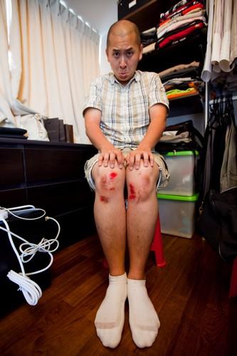 Raymond Phang Photography - Raymond Phang injured