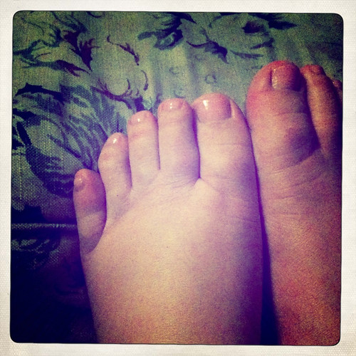 Toeses