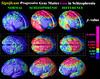 Esquizofrenia y Estrógenos, nuevo posible tratamiento.
