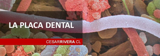 La Placa Dental - cesarrivera.cl - Densita en Curicó - Dentista en Talca