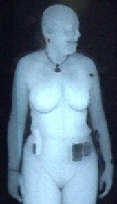 backscatter x-ray scan in which the body surface of a person is clearly visible
