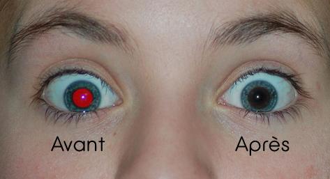 avant-apres-outil-oeil-rouge