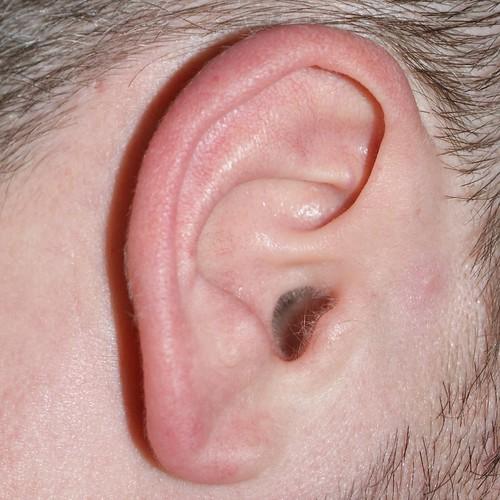 Earhole #1