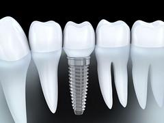 Dental implant (5cornerdentalbc) Tags: tooth implant 3d clean denture dent prosthesis dental dentist dentistry illustration medical render root teeth white bright enamel molar stomatology human jaw maxilla