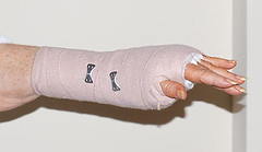 After carpal tunnel surgery