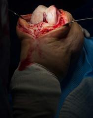 Knee Surgery (Tj Cowboy) Tags: hospital march blood nikon surgery knee tamron f11 prosthesis 2010 iso320 quirofano 28200mm protesis rodilla 1200sec nikond80 tamron28200mm