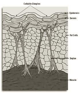 cellulite_structure
