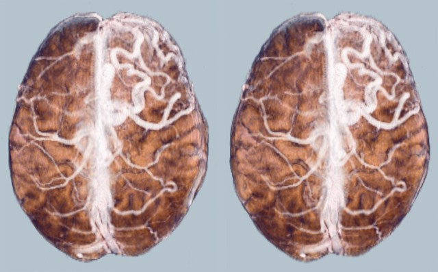 Brain: AVM. Volume Rendering of an MRI scan of the brain . Arteriovenous malformation (AVM) on the right side. Stereoscopic image, to be viewed in crossview