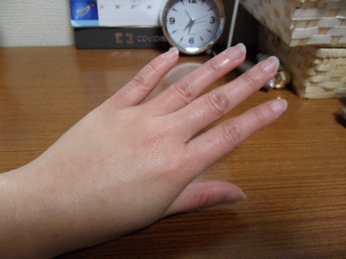 被凍傷的雙手