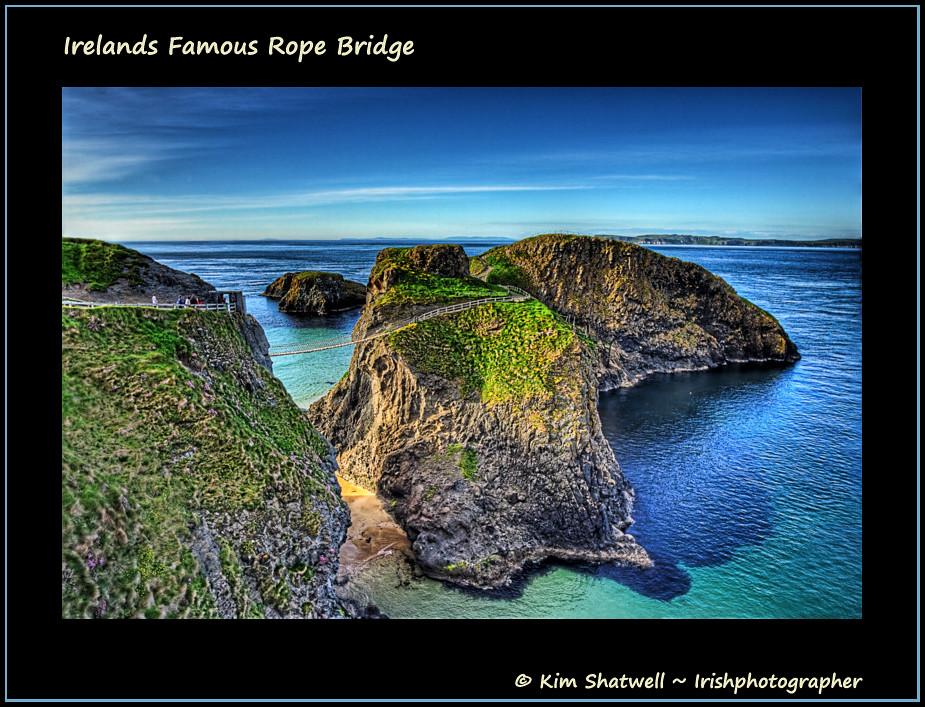 Irelands Famous Rope Bridge