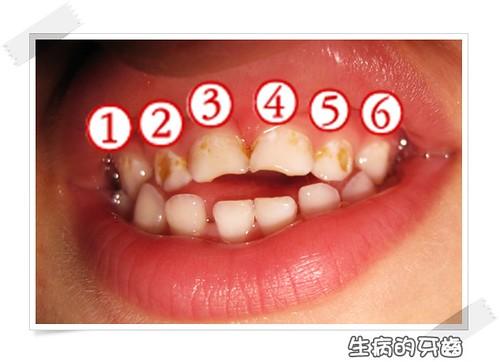 101110-生病的牙齒
