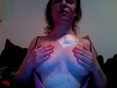 RSD Body Pic 4 with Swollen Breasts Covered with Permacath Removal Bandage - Veins Exploded from Swelling