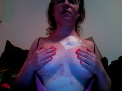 RSD Body Pic 4 with Swollen Breasts Covered with Permacath Removal Bandage - Veins Exploded from Swelling (Neuro Detour) Tags: tm ms veins bandage swelling rsd crps flareup multiplesclerosis varicose spiderveins melaniemiller permacath transversemyelitis raredisease neurodetour skindiscoloration breastline