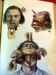 Illustrations de résections de la mâchoire inférieure