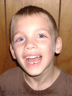 Lost his first tooth