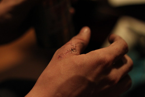 Mike's Hand