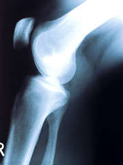 X-ray photography (Jeff Rasansky) Tags: people white black photography photo ray pattern technology image body leg injury science medical human photograph xray anatomy medicine inside bone hip femur tibia knee joint diagnostic physical illness treatment radiogram roentgen rontgen