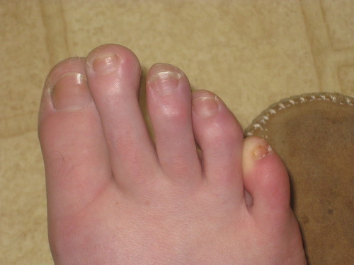 One of my crunched toenails fell off!