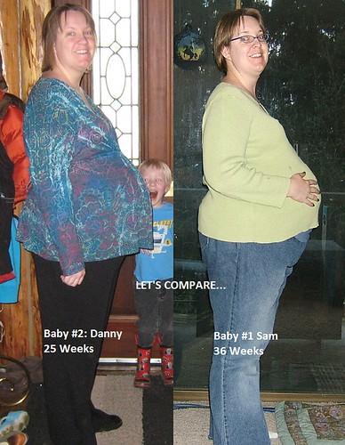 Pregnancy Comparison