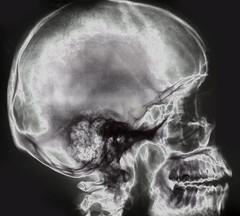 X-Ray Skull 2
