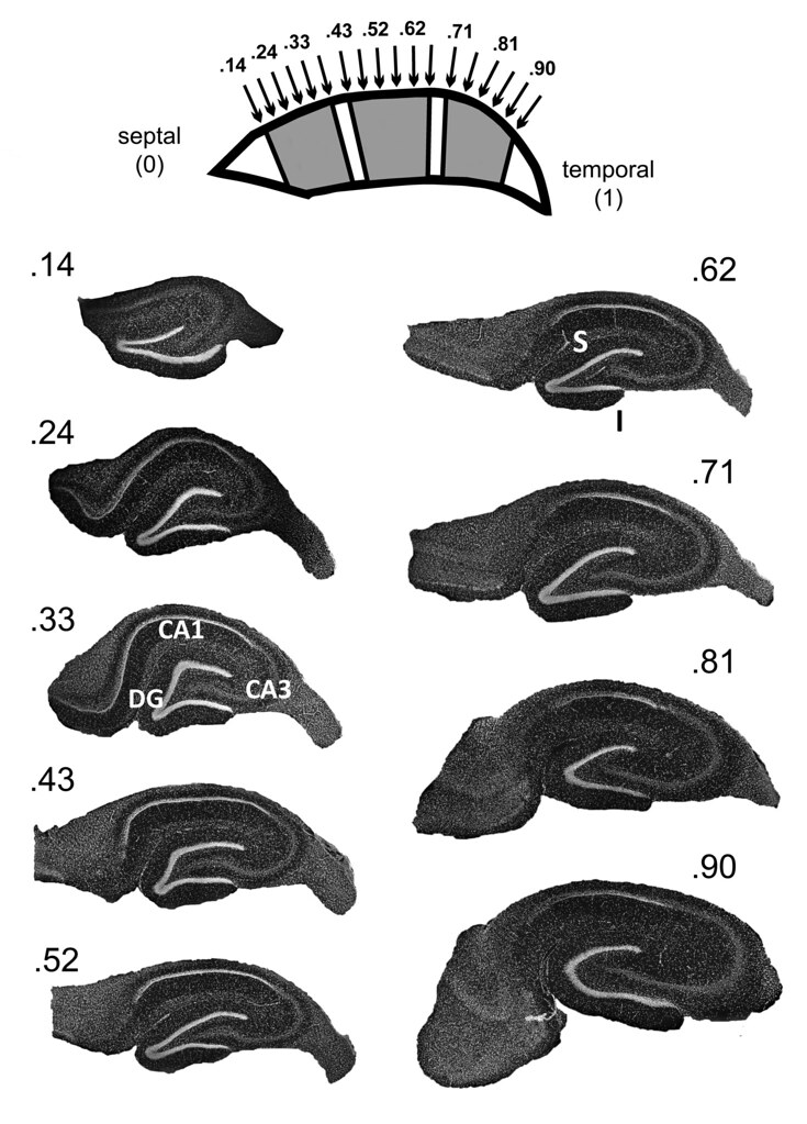 The Dorsoventral And Septotemporal Nature Of The Hippocampus
