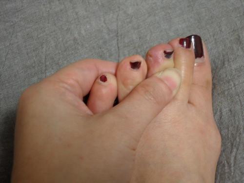 腳趾的肉被刮掉了,超級痛!