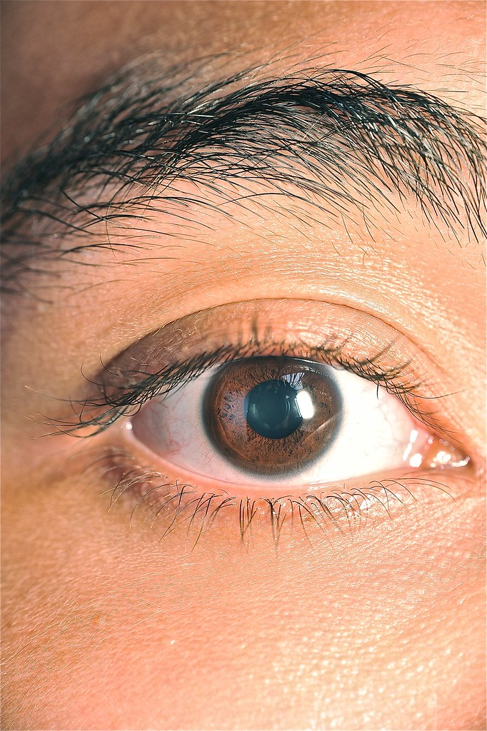 LASIK Eye