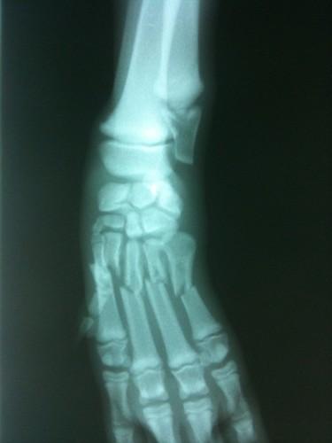 Reggie's broken hand