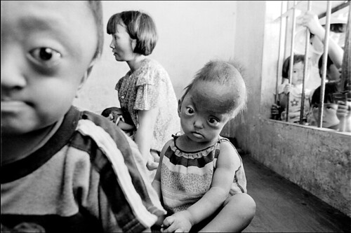 Agent Orange Victims by James Nachtwey