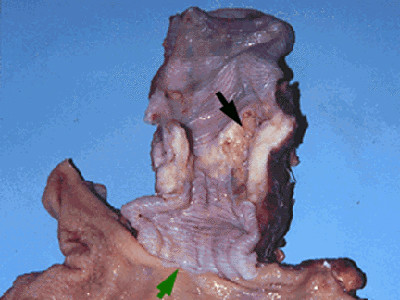 Oesophageal Squamous Cell Carcinoma