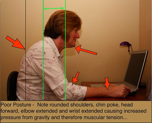 ergonomics article, poor computer posture