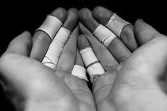 My injured hands (Rookipix) Tags: guillaume lucas rookipix france creative photography d5300 nikon nikkor me my feelings reflections ideas photographie créative moi mes émotions réflexions idées