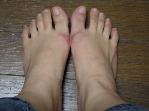 被凍傷和流血的雙腳