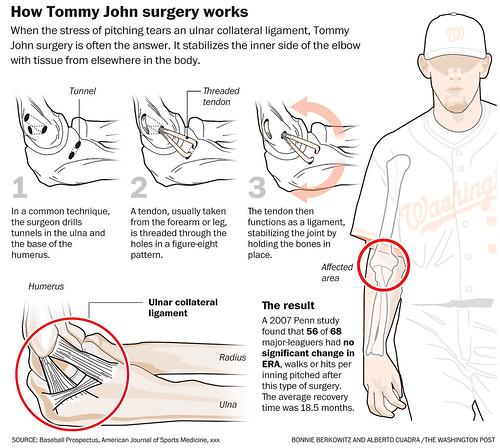 Tommy John Surgery Diagram