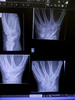 Third time lucky? (andrewwdavies) Tags: apple broken pins 3g wires xray bone wrist fracture iphone graft scaphoid andrewwilliamdavies