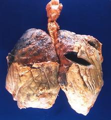 Fibrinous pleuritis overlying subpleural rheumatoid nodules (Pulmonary Pathology) Tags: gross specimen pathology lung macroscopic nodule rheumatoid pleura rheumatoidnodule pleuritis fibrinous