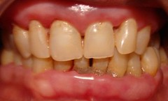 Periodontal Disease in 53-year old man