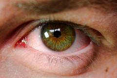 brown eye closeup blood eyes shot hazel randy wade bloodshot irritation randywade