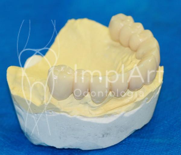 implante dentário - prótese provisória para carga imediata 2