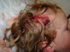 Cachunk cachunk (corpse of taloy) Tags: head injury down falling greyson alexander staples cachunk firststaples