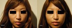 Non-Surgical Nose Job (sasha1168) Tags: nose lift dr surgery alexander job nasal cosmetic rhinoplasty noninvasive nonsurgical restylane rivkin juvederm