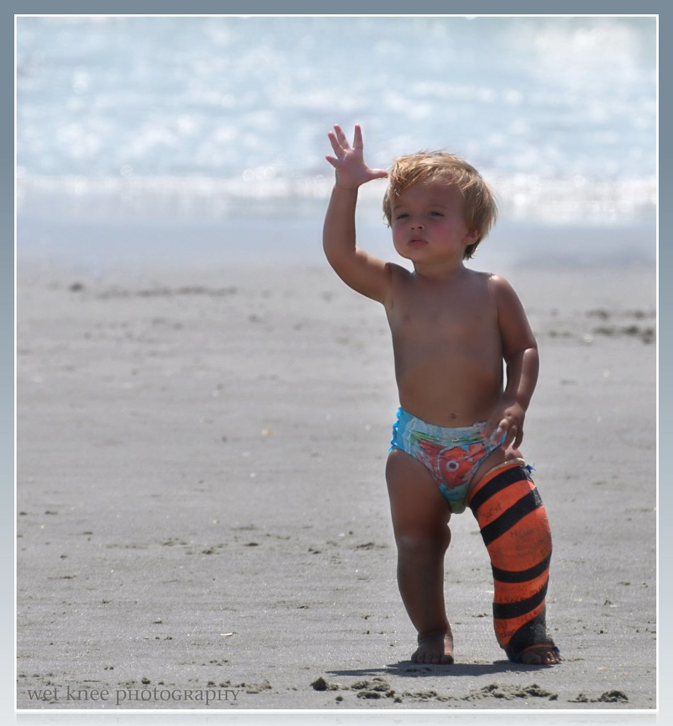 Beach Baby with a Bum Leg