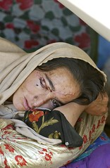 Injured Pakistan Earthquake Victim