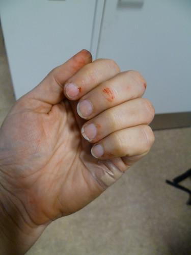 battered hand