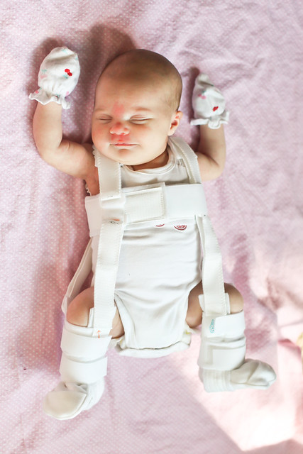 Difference between Pavlik Harness and Rhino Harness? - BabyCenter