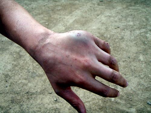 Sean's Broken Hand