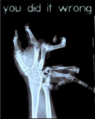 broken hand bth